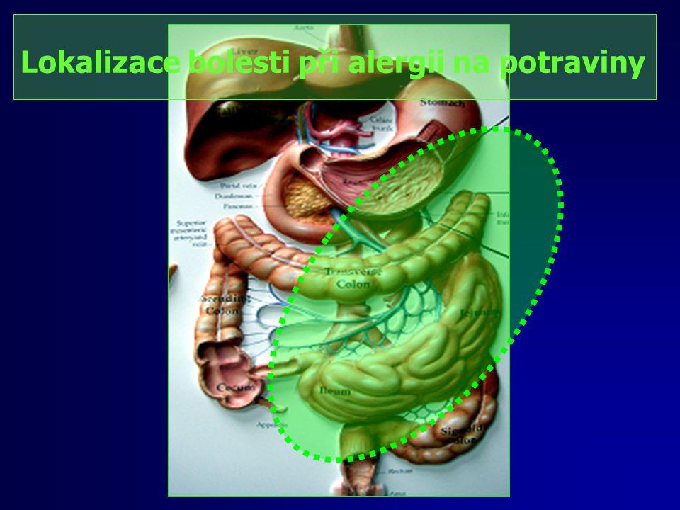 Lokalizace bolesti při alergii na potraviny
