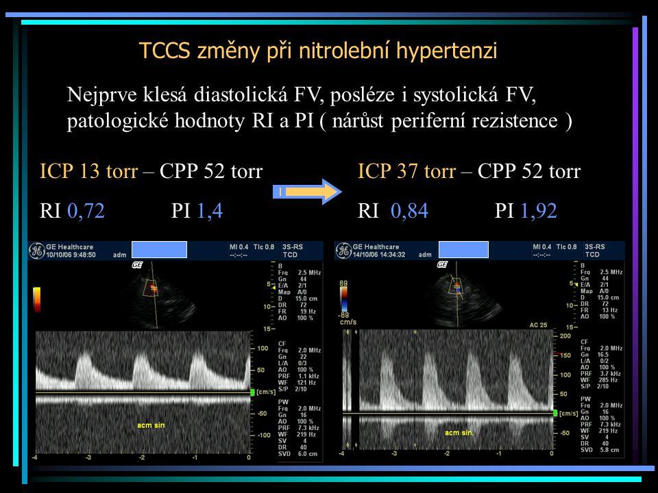 TCCS změny při nitrolební hypertenzi