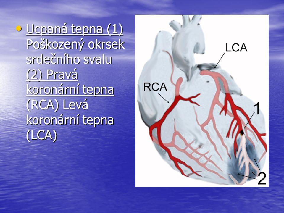 Ucpaná tepna (1) Poškozený okrsek srdečního svalu (2) Pravá koronární tepna (RCA) Levá koronární tepna (LCA)