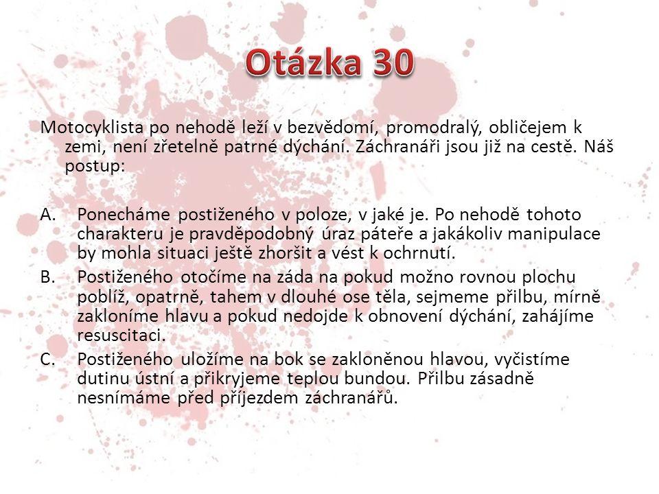 Otázka 30