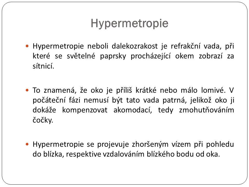 Hypermetropie Hypermetropie neboli dalekozrakost je refrakční vada, při které se světelné paprsky procházející okem zobrazí za sítnicí.