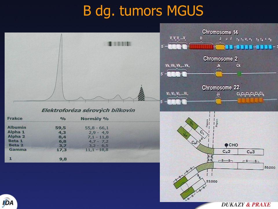 B dg. tumors MGUS