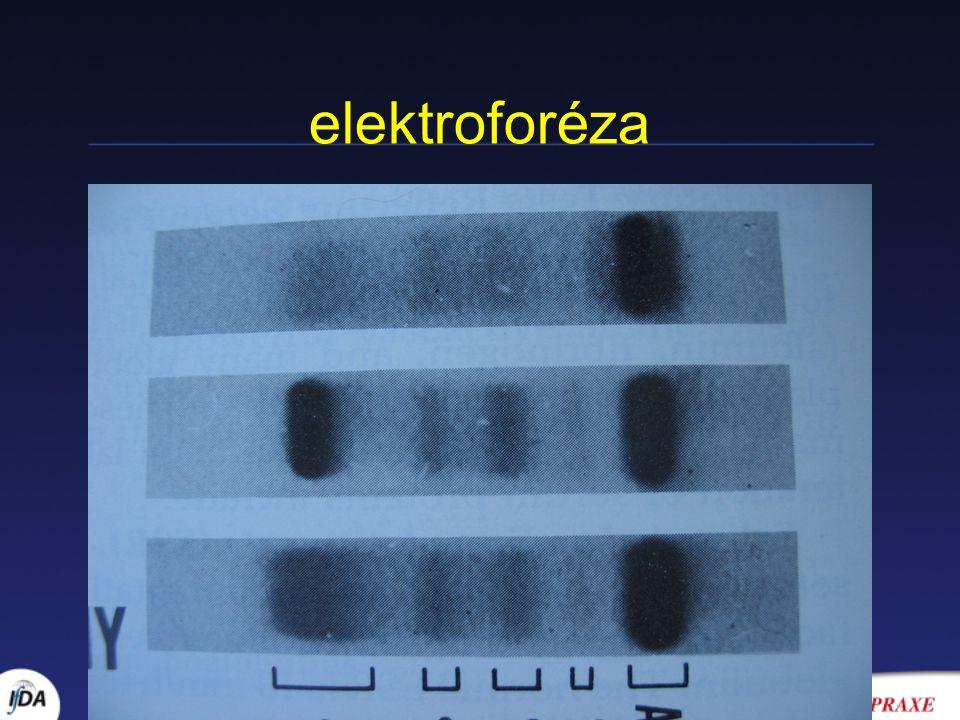 elektroforéza