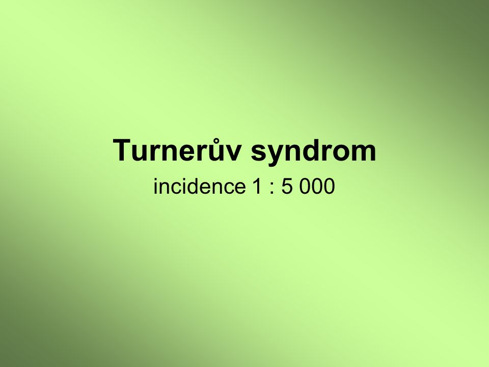 Turnerův syndrom incidence 1 : 5 000