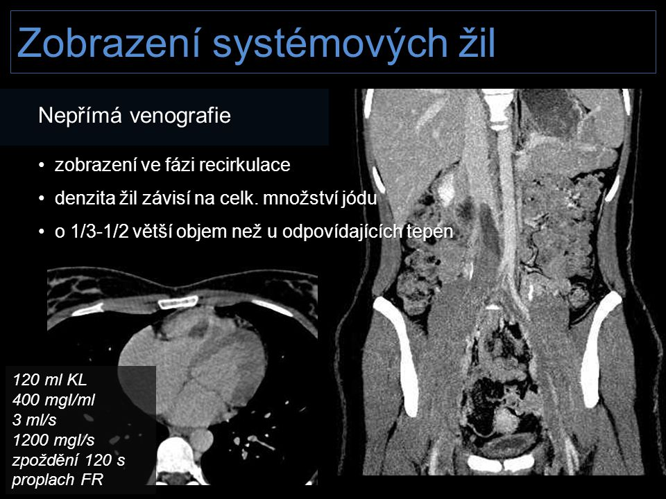Zobrazení systémových žil