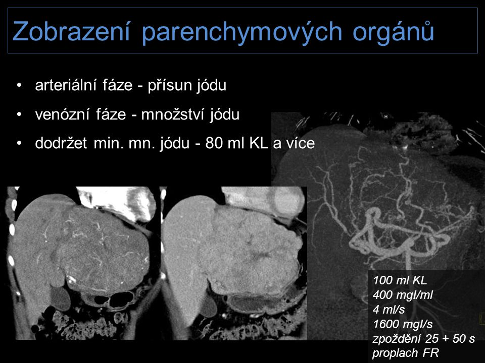 Zobrazení parenchymových orgánů