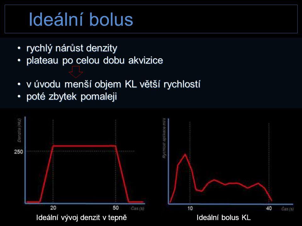 Ideální bolus rychlý nárůst denzity plateau po celou dobu akvizice