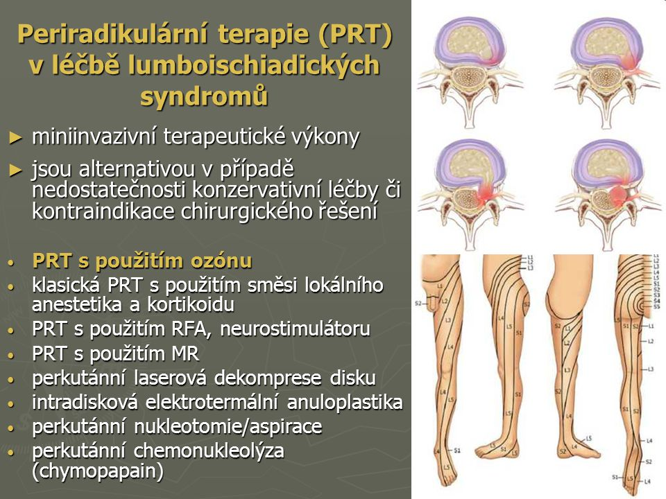 Periradikulární terapie (PRT) v léčbě lumboischiadických syndromů