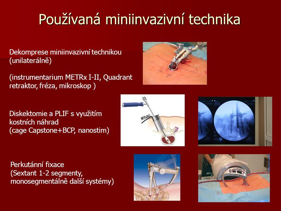 Používaná miniinvazivní technika