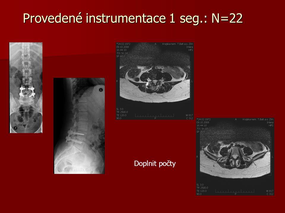 Provedené instrumentace 1 seg.: N=22