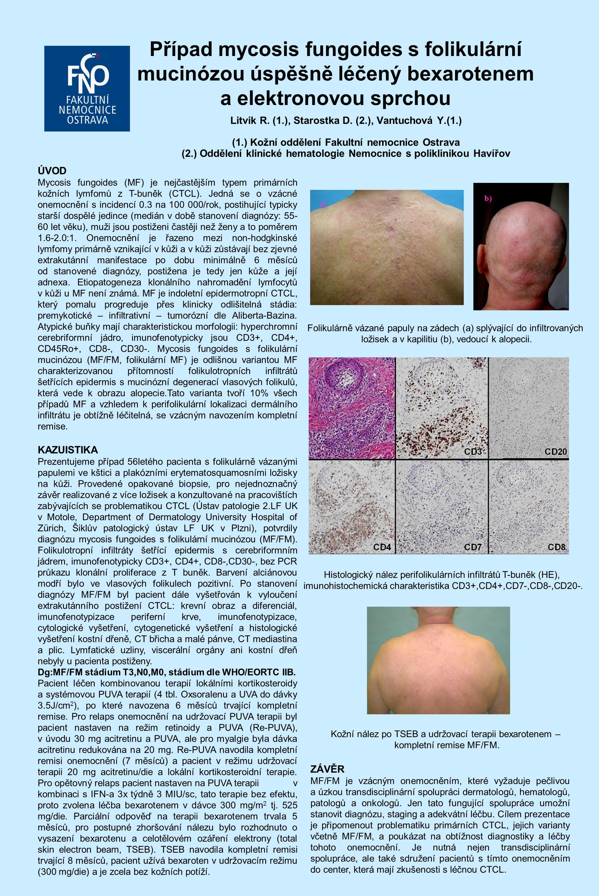 Případ mycosis fungoides s folikulární mucinózou úspěšně léčený bexarotenem a elektronovou sprchou