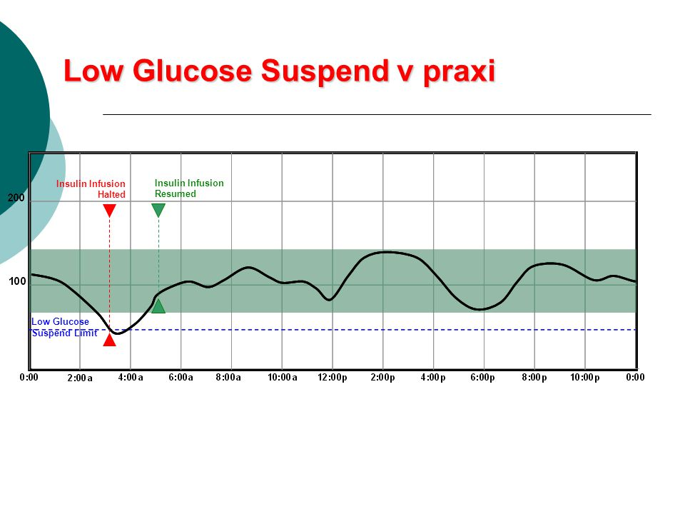 Low Glucose Suspend v praxi