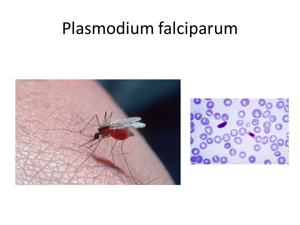 Plasmodium falciparum