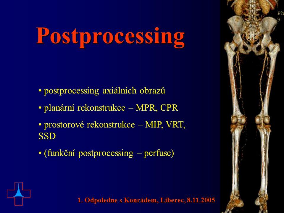 Postprocessing postprocessing axiálních obrazů