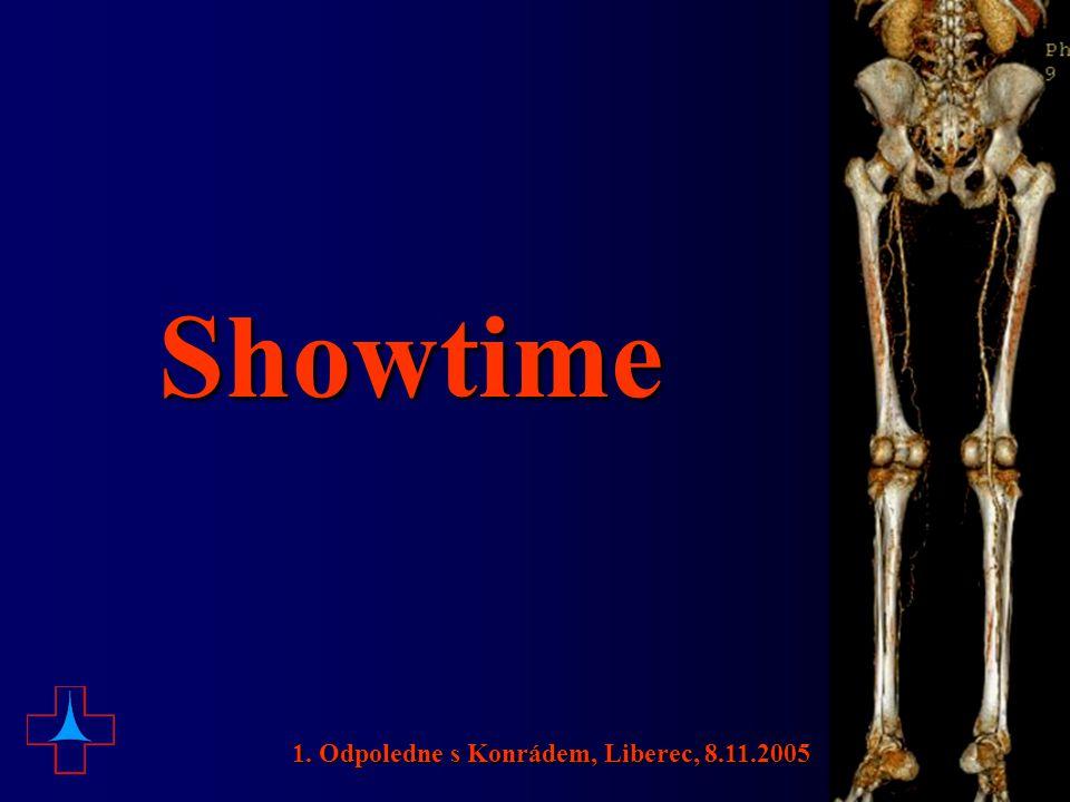Showtime 1. Odpoledne s Konrádem, Liberec, 8.11.2005