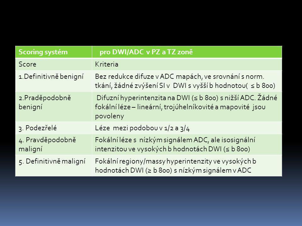 Scoring systém pro DWI/ADC v PZ a TZ zoně. Score. Kriteria. 1.Definitivně benigní.