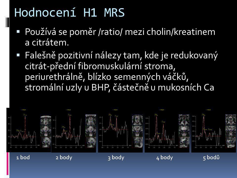 Hodnocení H1 MRS Používá se poměr /ratio/ mezi cholin/kreatinem a citrátem.
