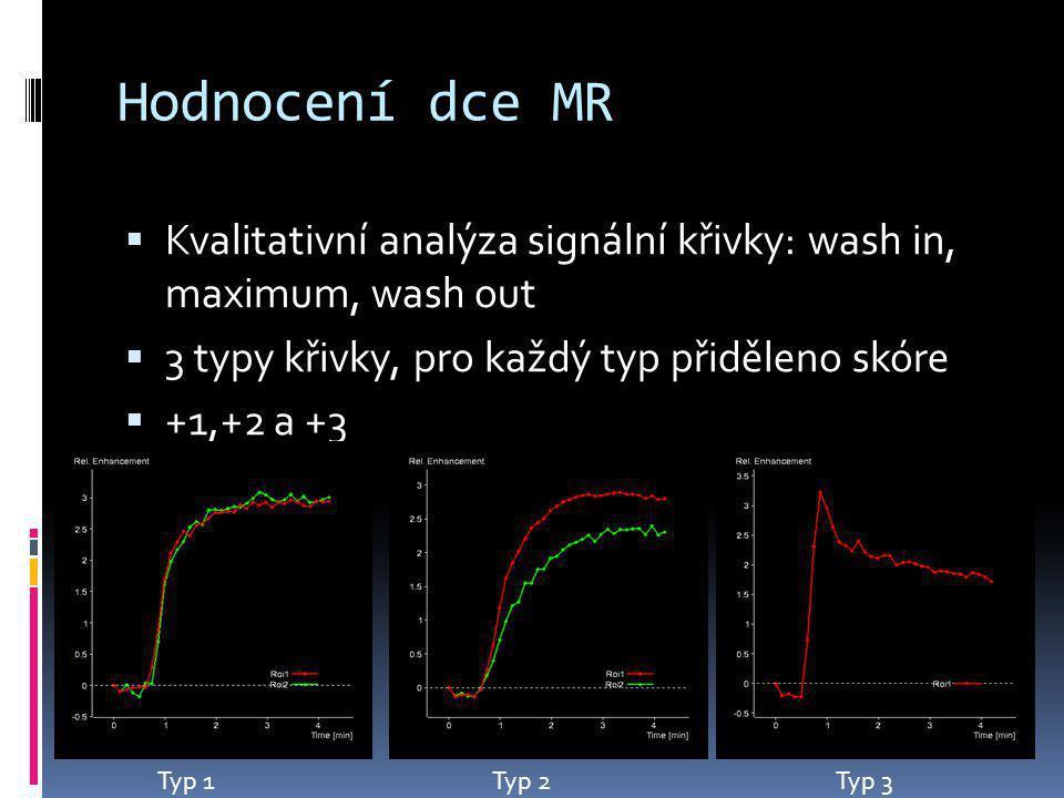 Hodnocení dce MR Kvalitativní analýza signální křivky: wash in, maximum, wash out. 3 typy křivky, pro každý typ přiděleno skóre.