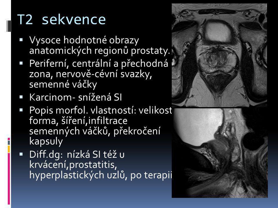 T2 sekvence Vysoce hodnotné obrazy anatomických regionů prostaty.