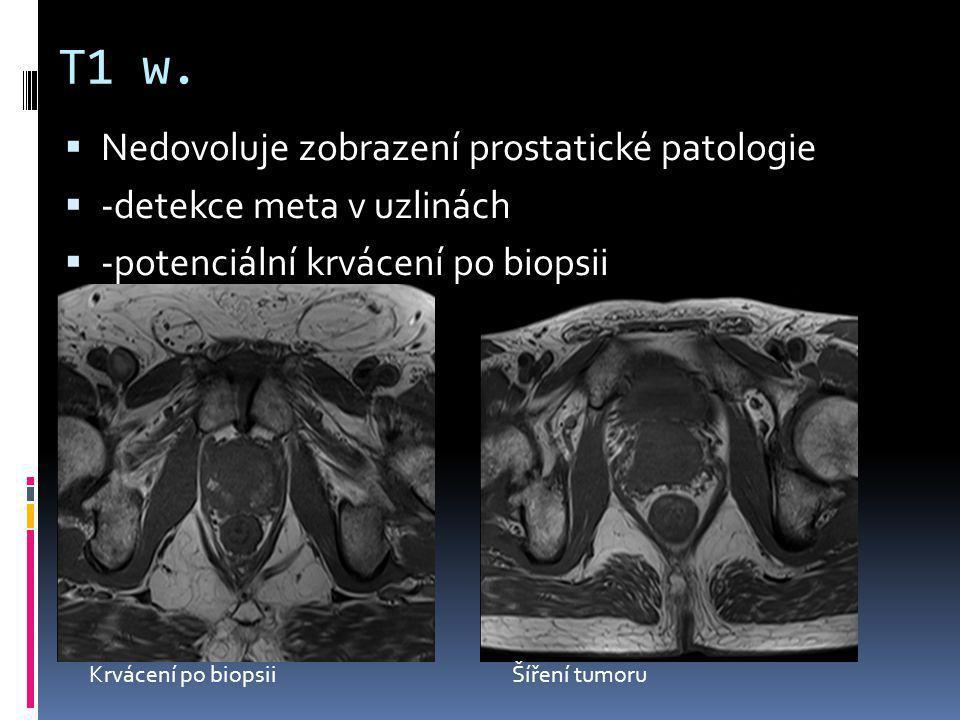 T1 w. Nedovoluje zobrazení prostatické patologie