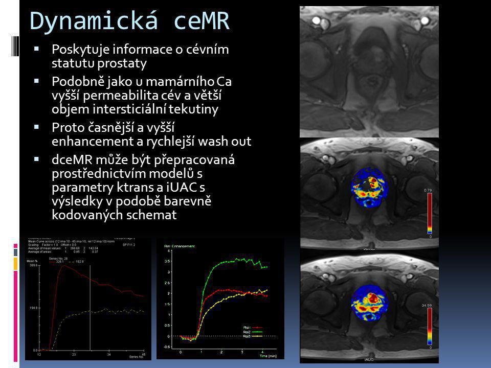 Dynamická ceMR Poskytuje informace o cévním statutu prostaty
