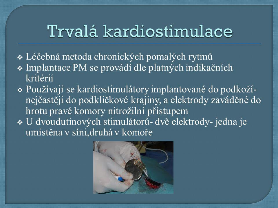 Trvalá kardiostimulace