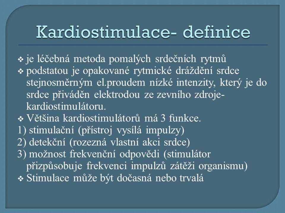 Kardiostimulace- definice