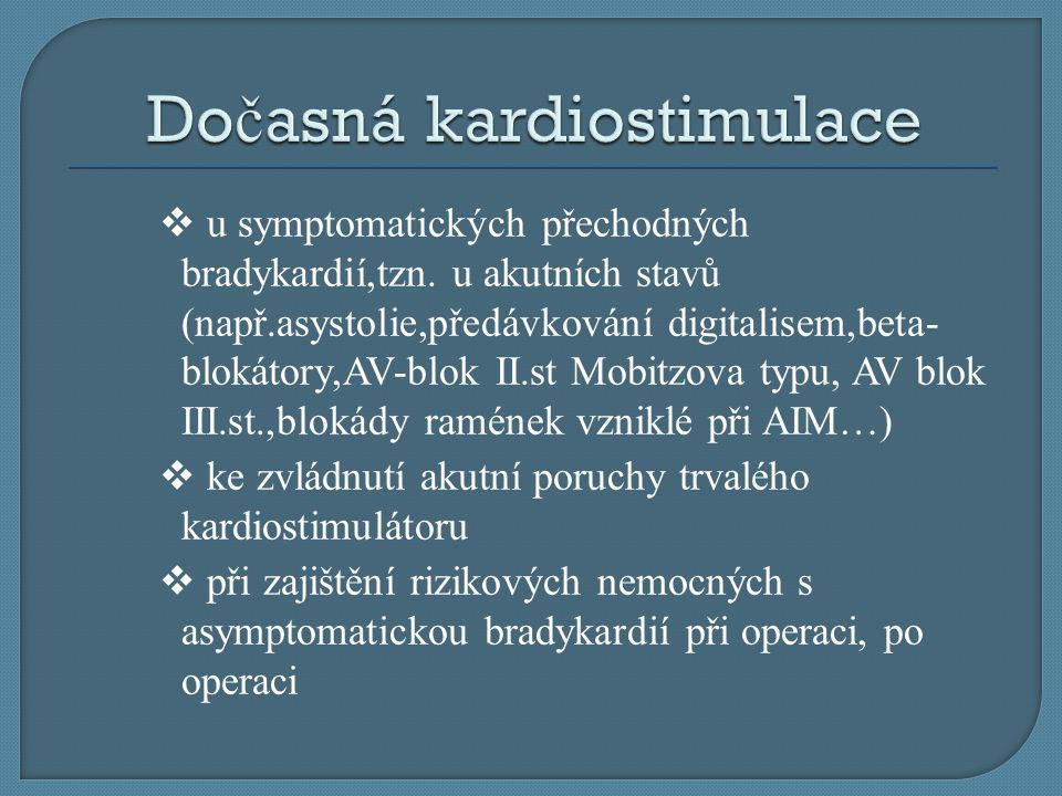 Dočasná kardiostimulace