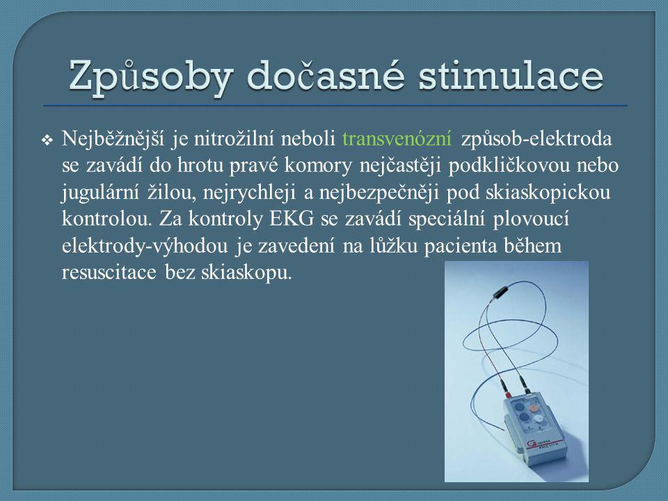 Způsoby dočasné stimulace