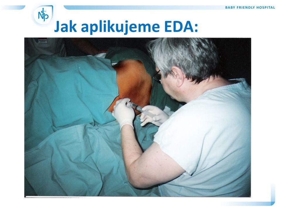 Jak aplikujeme EDA: