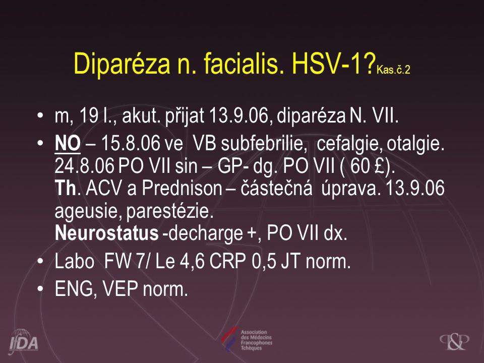 Diparéza n. facialis. HSV-1 Kas.č.2