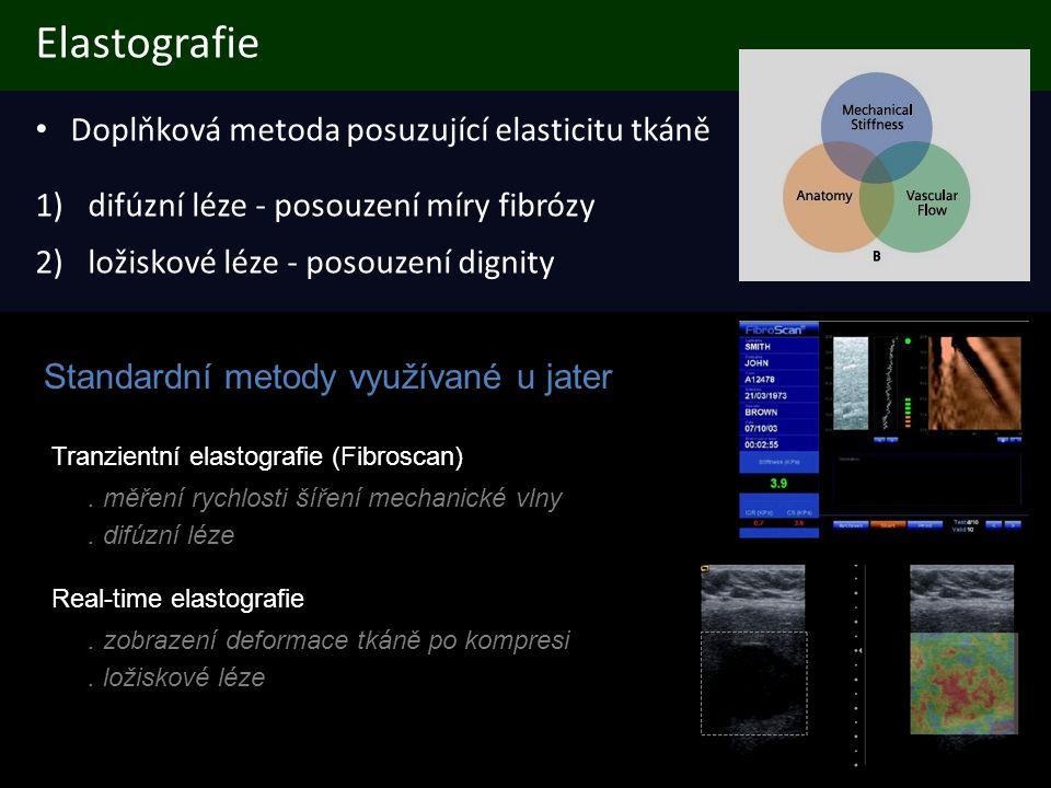Elastografie Doplňková metoda posuzující elasticitu tkáně