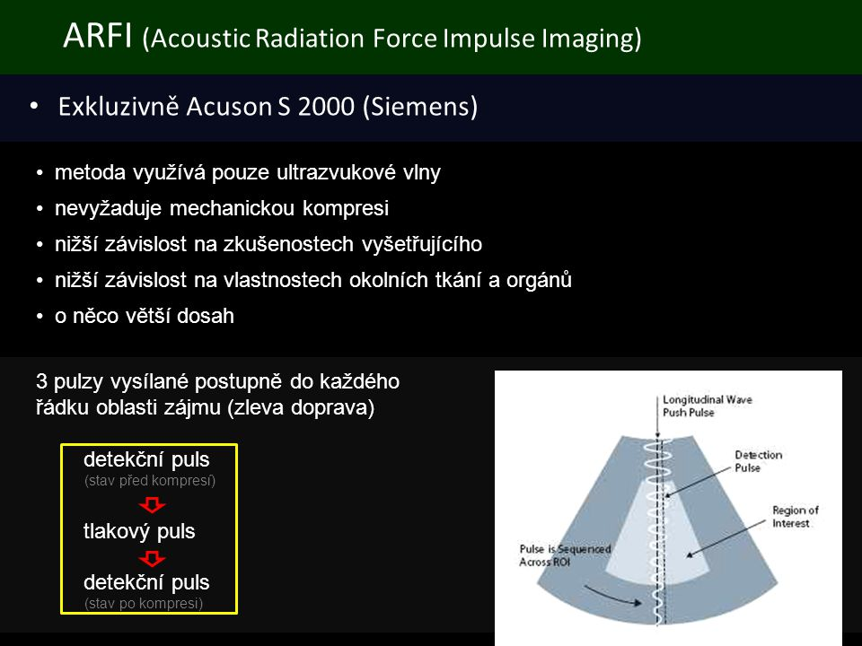 ARFI (Acoustic Radiation Force Impulse Imaging)