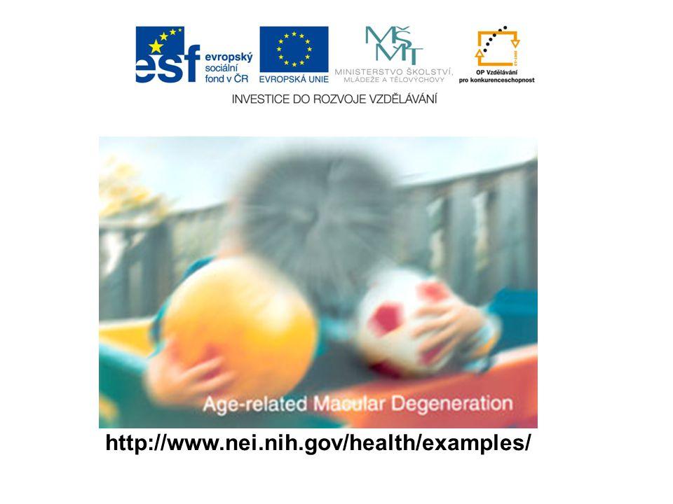 http://www.nei.nih.gov/health/examples/