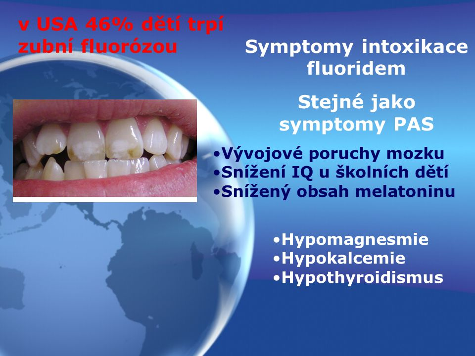 Symptomy intoxikace fluoridem Stejné jako symptomy PAS