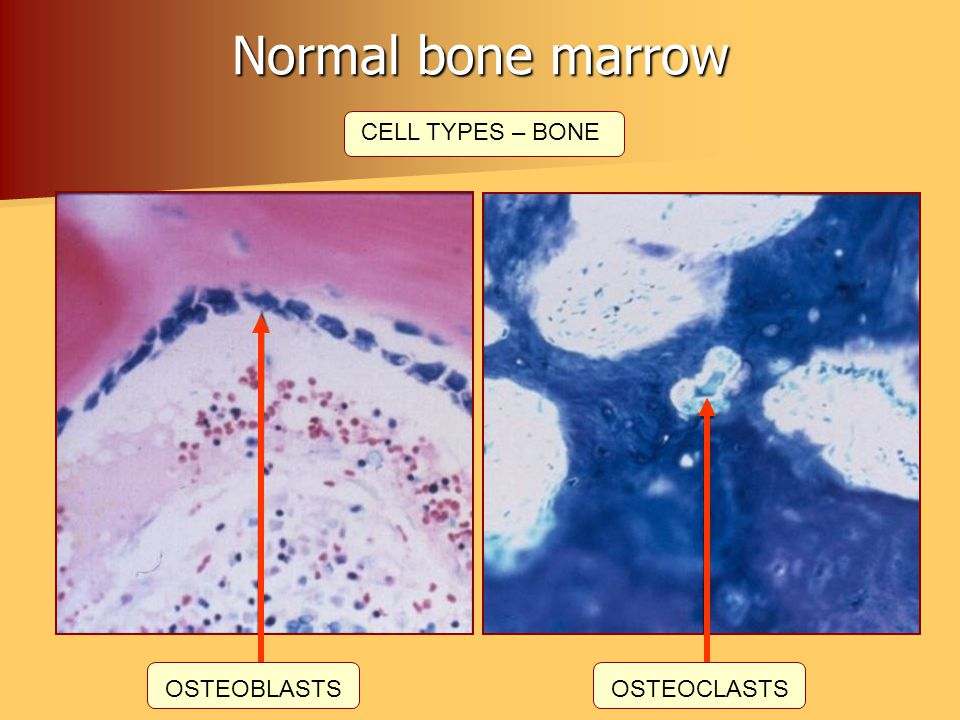 Normal bone marrow CELL TYPES – BONE OSTEOBLASTS OSTEOCLASTS