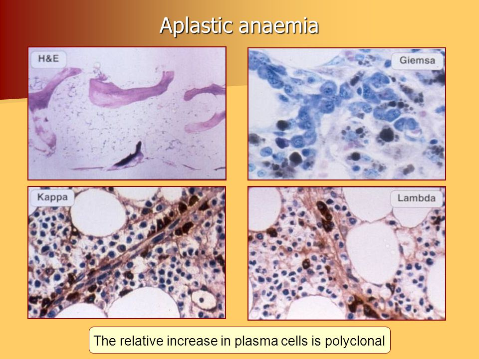 The relative increase in plasma cells is polyclonal