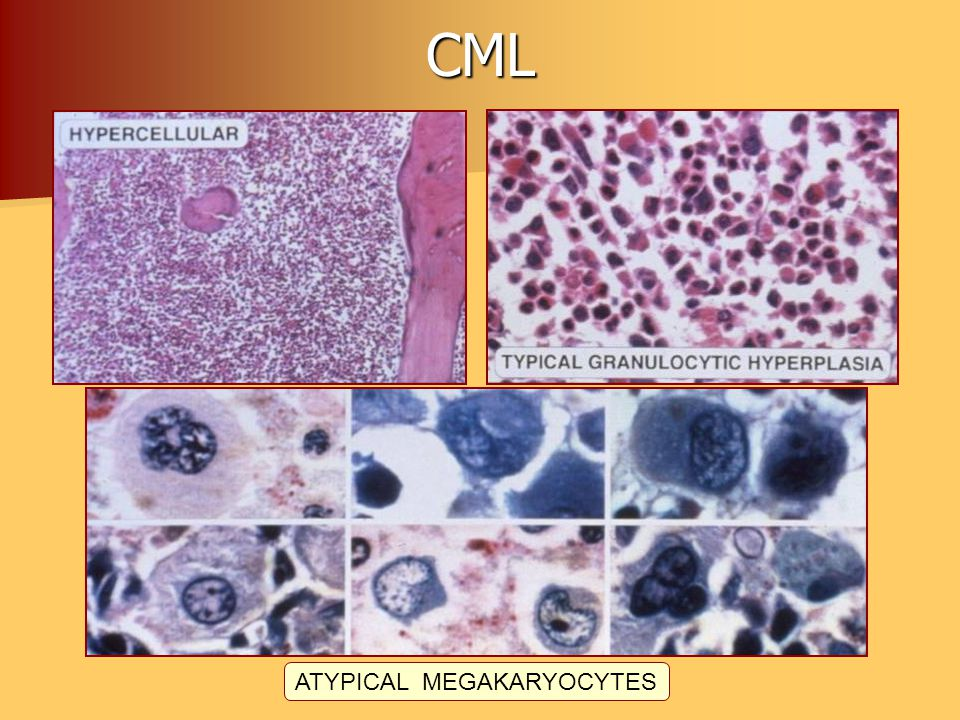 ATYPICAL MEGAKARYOCYTES