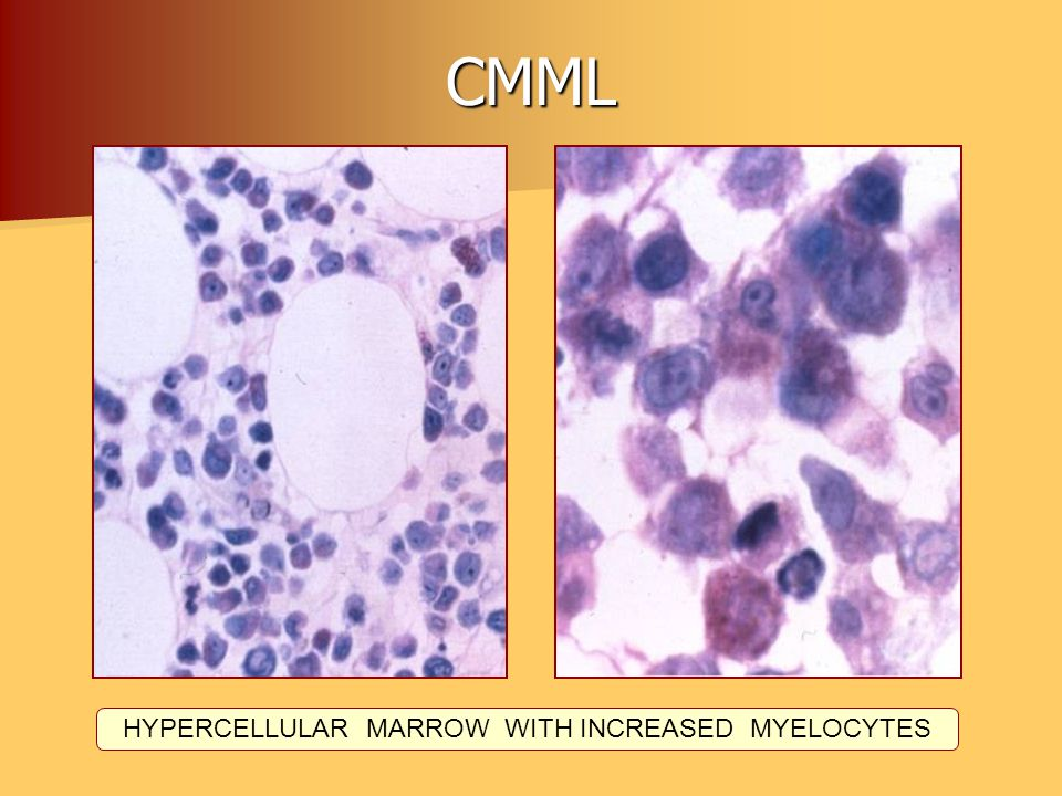 HYPERCELLULAR MARROW WITH INCREASED MYELOCYTES