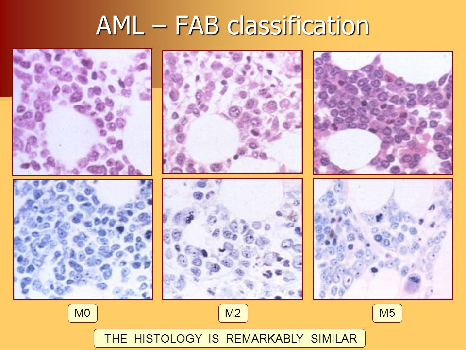 AML – FAB classification