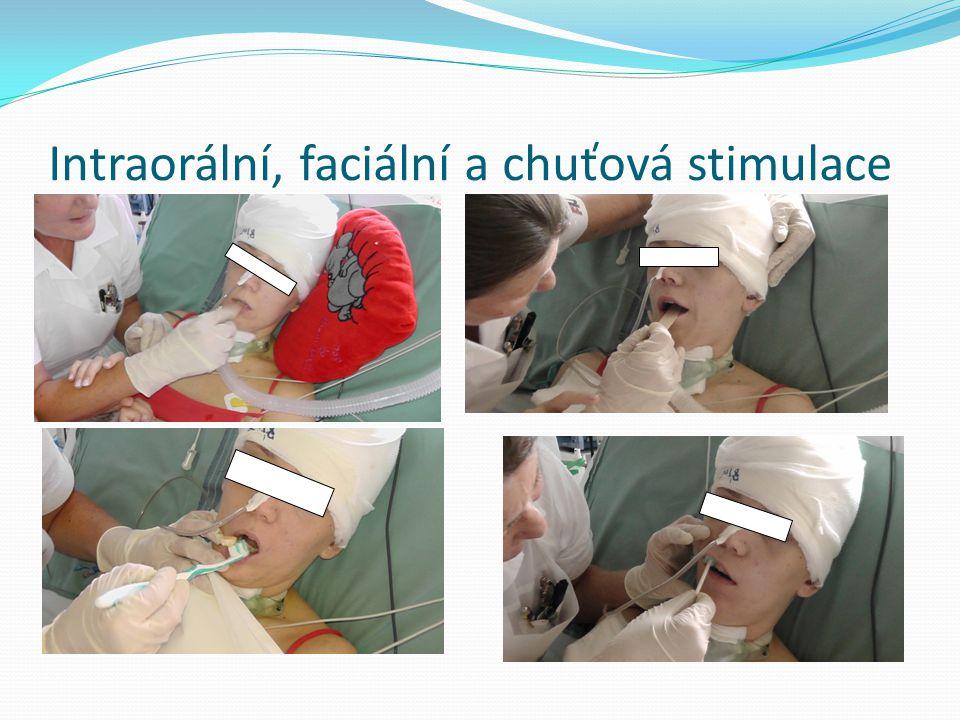Intraorální, faciální a chuťová stimulace