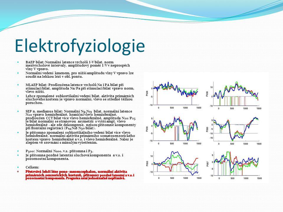 Elektrofyziologie BAEP bilat: Normální latence vrcholů I-V bilat, norm mezivrcholové intervaly, amplitudový poměr I/V v neprospěch vlny V vpravo.