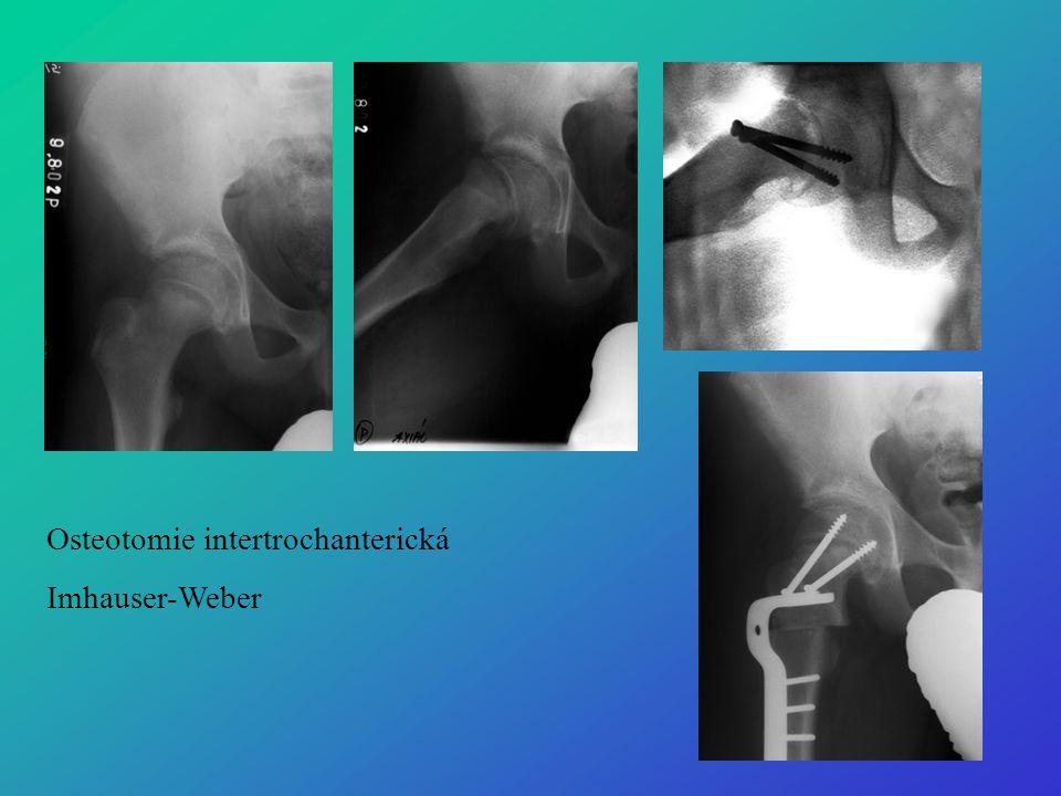 Osteotomie intertrochanterická