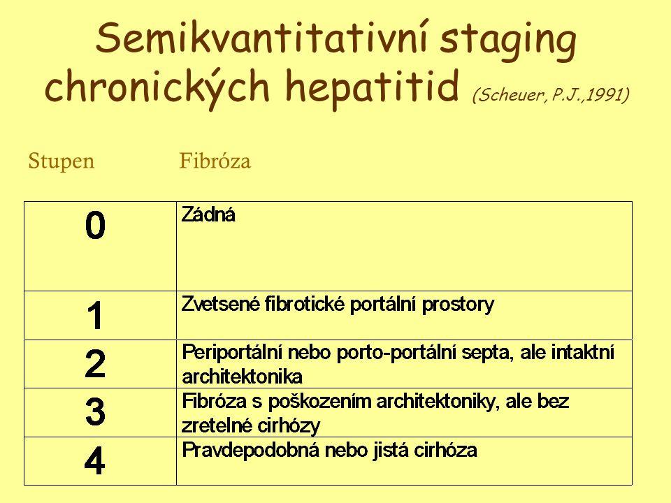 Semikvantitativní staging chronických hepatitid (Scheuer, P.J.,1991)
