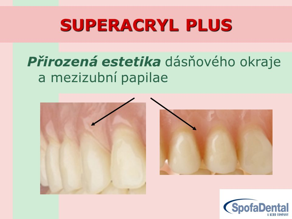 SUPERACRYL PLUS Přirozená estetika dásňového okraje a mezizubní papilae