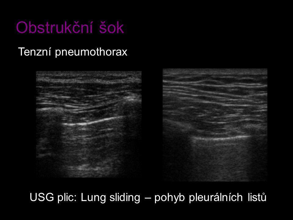 Obstrukční šok Tenzní pneumothorax
