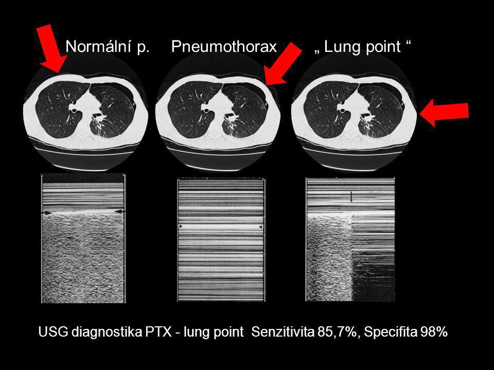 "Normální p. Pneumothorax "" Lung point"