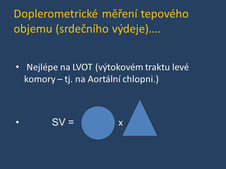 Doplerometrické měření tepového objemu (srdečního výdeje)….