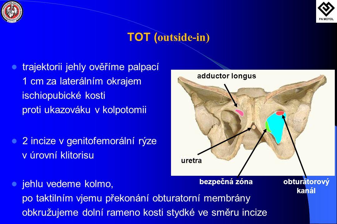 TOT (outside-in) trajektorii jehly ověříme palpací