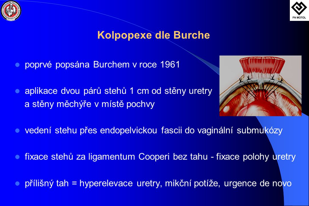 Kolpopexe dle Burche poprvé popsána Burchem v roce 1961